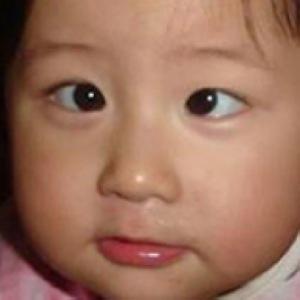 5岁儿童弱视怎么治疗?