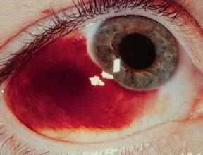 眼底充血是怎么回事 _ 眼底出血 -