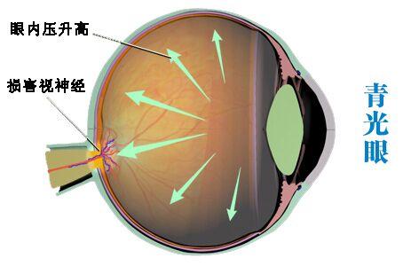患青光眼为什么会失明?