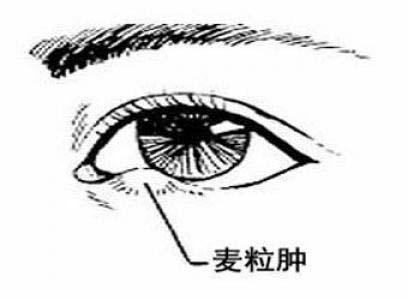 孩子眼睛发痒红肿患上了麦粒肿 千万不要去挤!