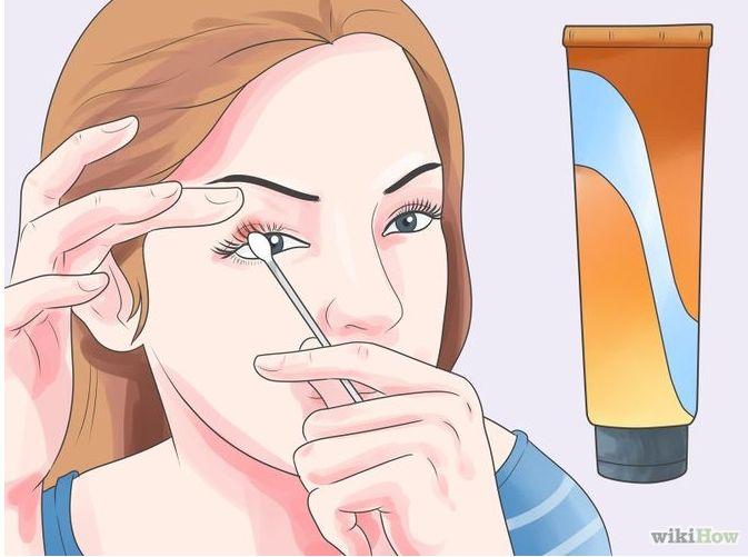 睑腺炎(麦粒肿)治疗方法